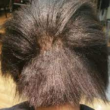 Detriments of hair relaxer post thumbnail image