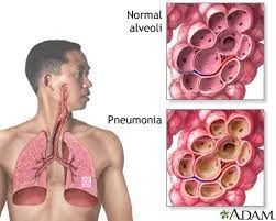 PNEUMONIA: causes, symptoms, transmission, complications and preventions post thumbnail image